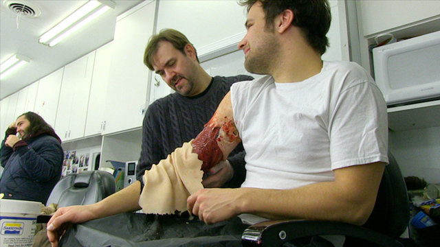 Time-Lapse of a Grisly Arm Wound