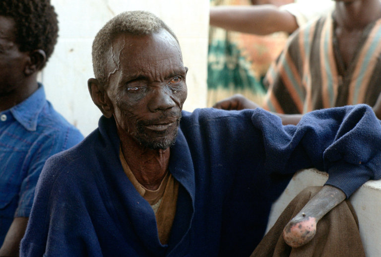 Patient at Leprosy Clinic, Gambia